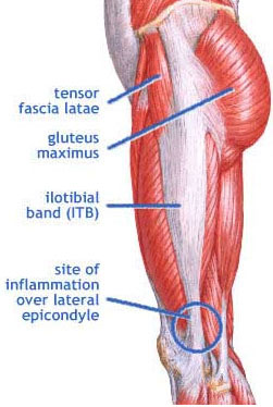 IT Band Tendonitis