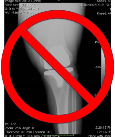 alternative to knee replacement surgery